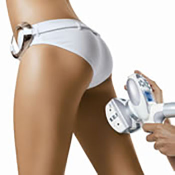 Endermologie – Cellulite
